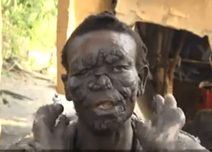 un homme qui souffre de la lèpre
